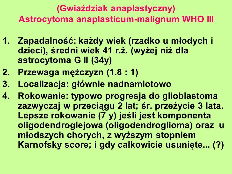 (Gwiaździak anaplastyczny) Astrocytoma anaplasticum-malignum WHO III 1.Zapadalność: każdy wiek (rzadko u młodych i dzieci), średni wiek 41 r.ż. (wyżej