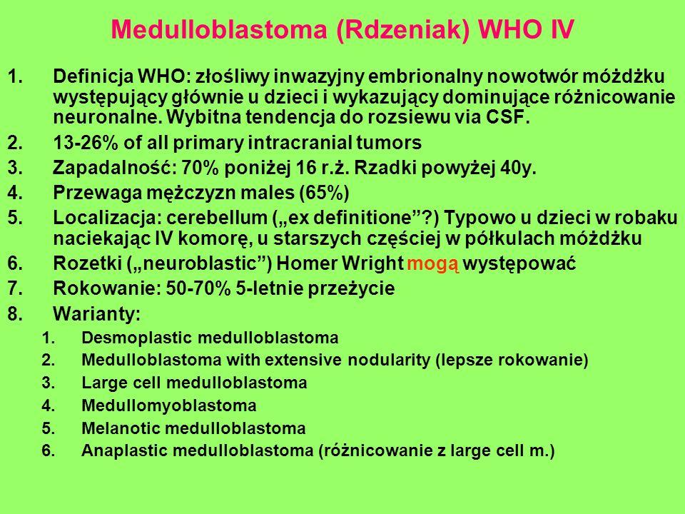 Medulloblastoma (Rdzeniak) WHO IV 1.Definicja WHO: złośliwy inwazyjny embrionalny nowotwór móżdżku występujący głównie u dzieci i wykazujący dominując