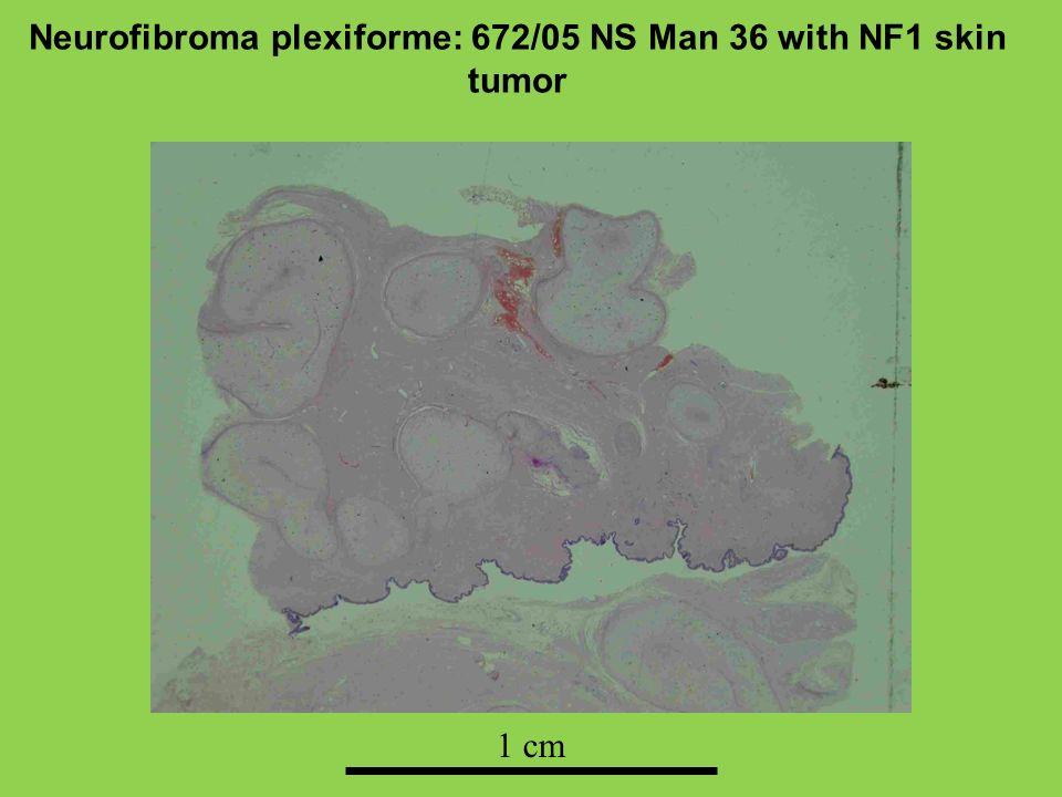 Neurofibroma plexiforme: 672/05 NS Man 36 with NF1 skin tumor 1 cm