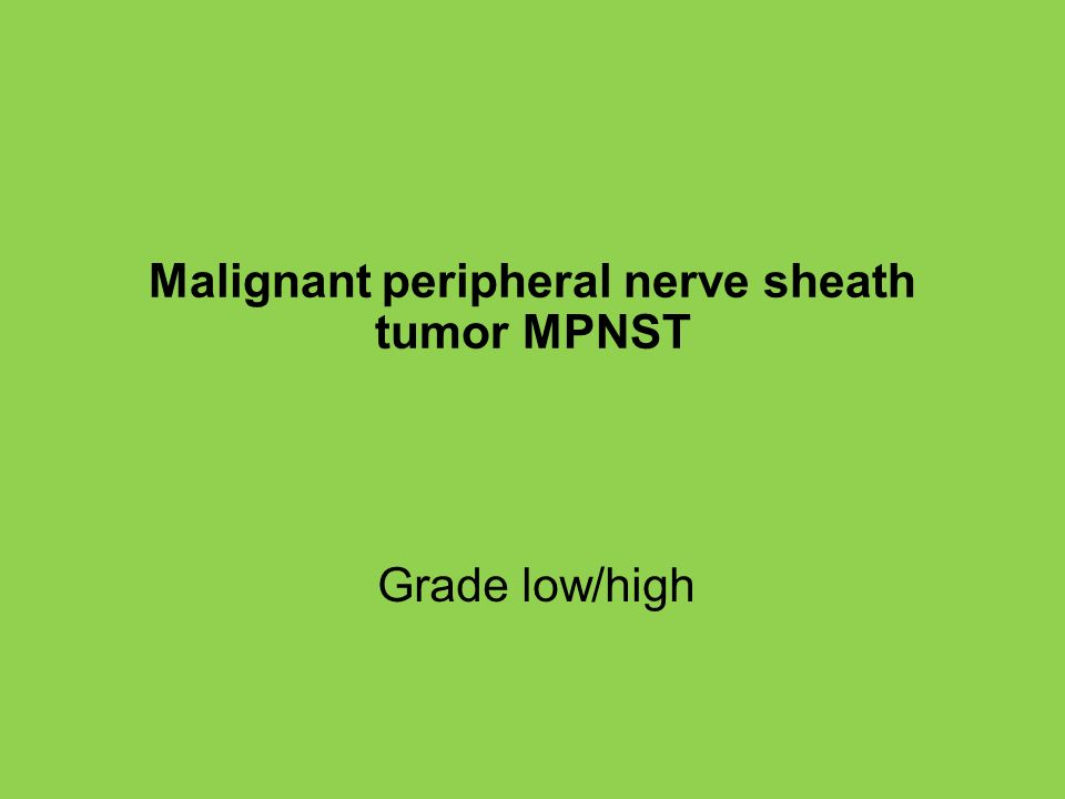 Malignant peripheral nerve sheath tumor MPNST Grade low/high