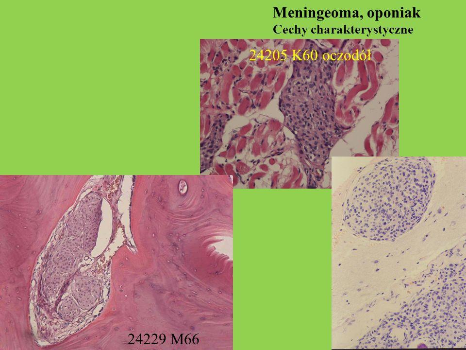 Meningeoma, oponiak Cechy charakterystyczne 24229 M66 24205 K60 oczodół