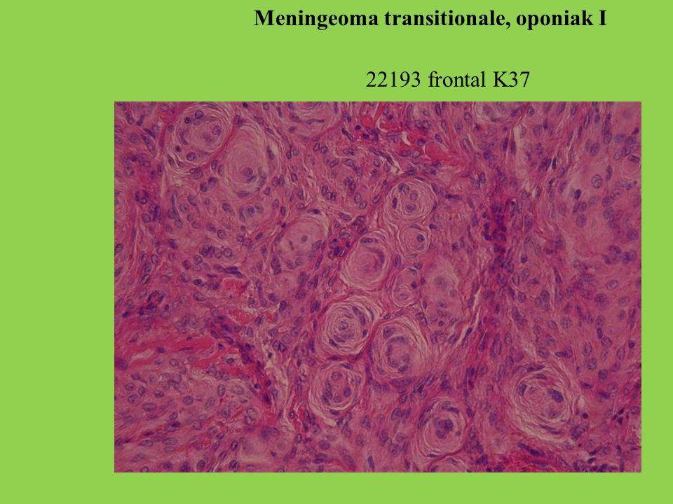 22193 frontal K37 Meningeoma transitionale, oponiak I