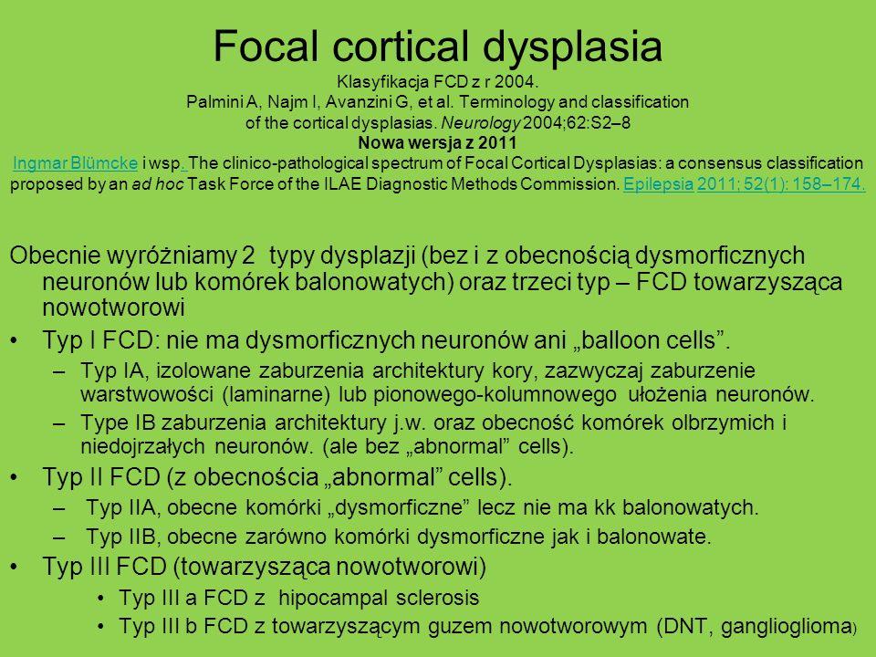 Focal cortical dysplasia Klasyfikacja FCD z r 2004. Palmini A, Najm I, Avanzini G, et al. Terminology and classification of the cortical dysplasias. N