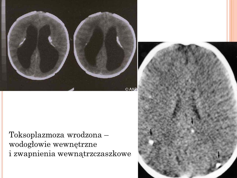 Toksoplazmoza wrodzona – wodogłowie wewnętrzne i zwapnienia wewnątrzczaszkowe
