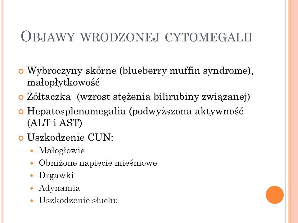 O BJAWY WRODZONEJ CYTOMEGALII Wybroczyny skórne (blueberry muffin syndrome), małopłytkowość Żółtaczka (wzrost stężenia bilirubiny związanej) Hepatospl