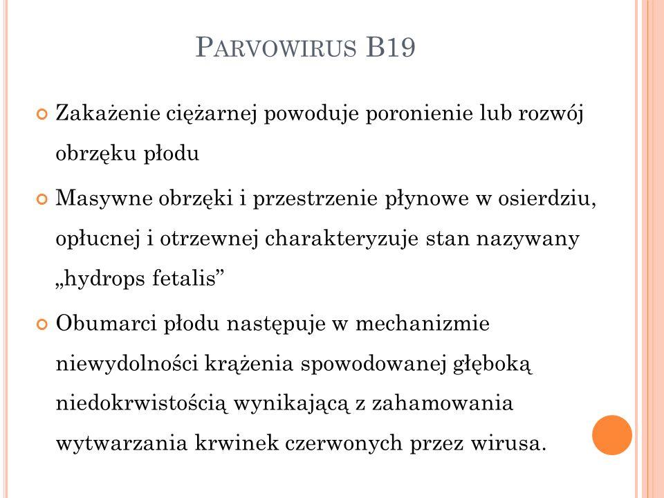 P ARVOWIRUS B19 Zakażenie ciężarnej powoduje poronienie lub rozwój obrzęku płodu Masywne obrzęki i przestrzenie płynowe w osierdziu, opłucnej i otrzew