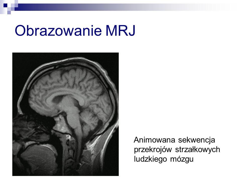 Obrazowanie MRJ Animowana sekwencja przekrojów strzałkowych ludzkiego mózgu