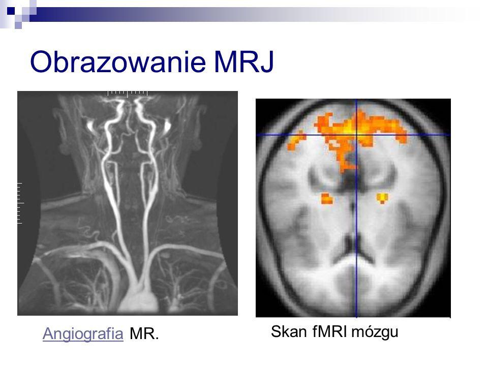 Obrazowanie MRJ Angiografia MR.Angiografia Skan fMRI mózgu
