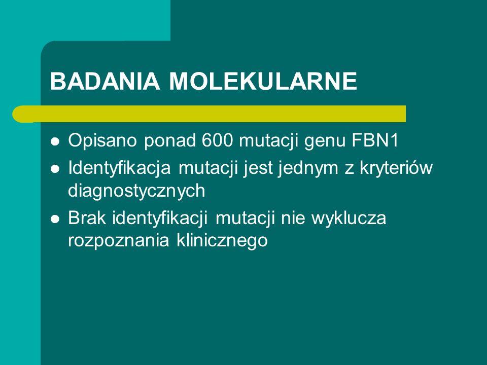 BADANIA MOLEKULARNE Opisano ponad 600 mutacji genu FBN1 Identyfikacja mutacji jest jednym z kryteriów diagnostycznych Brak identyfikacji mutacji nie w