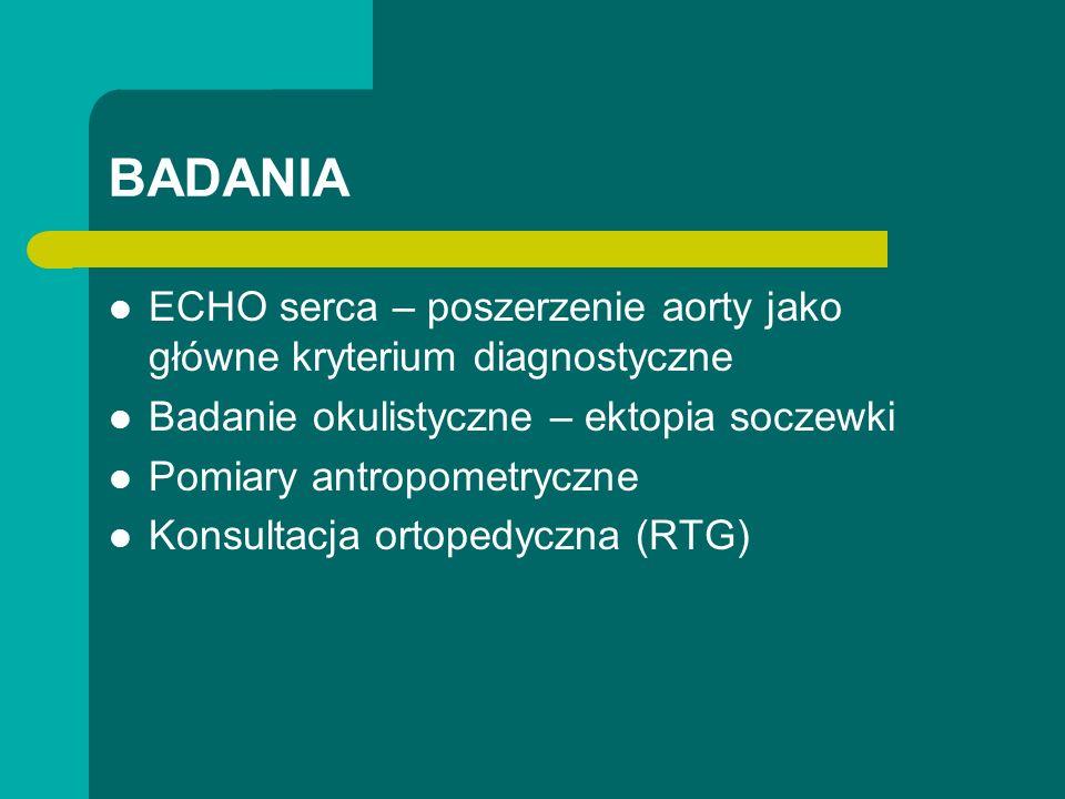 BADANIA ECHO serca – poszerzenie aorty jako główne kryterium diagnostyczne Badanie okulistyczne – ektopia soczewki Pomiary antropometryczne Konsultacja ortopedyczna (RTG)