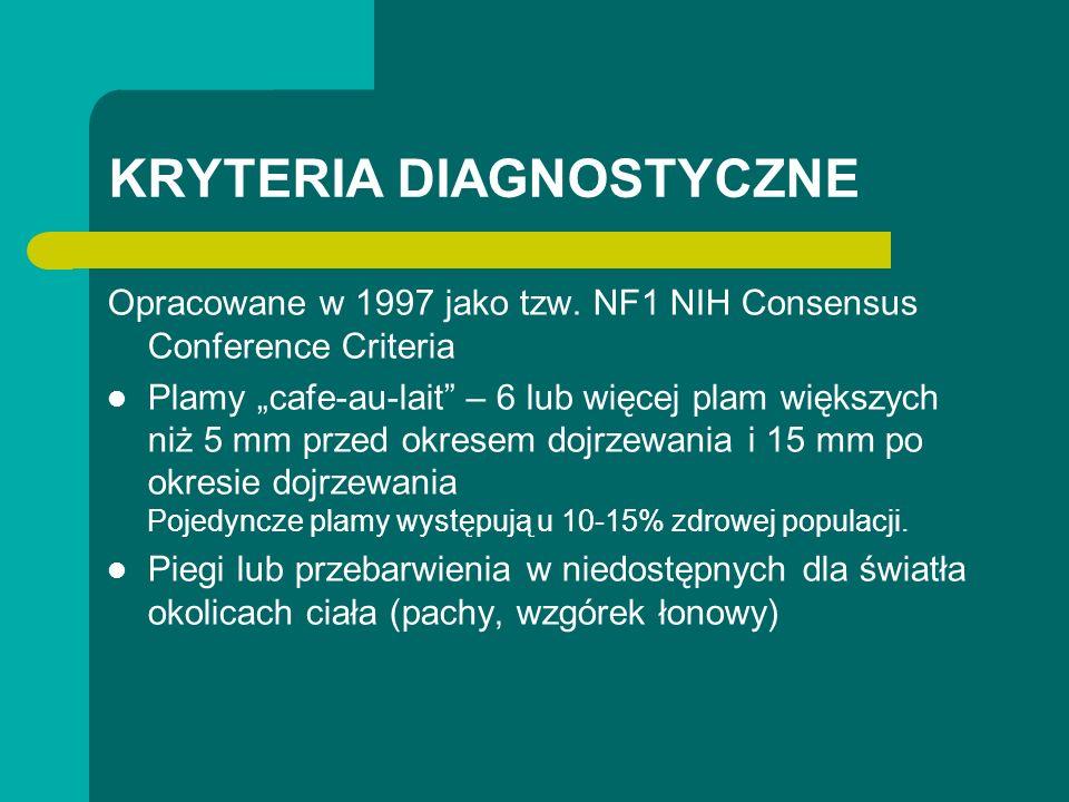 KRYTERIA DIAGNOSTYCZNE Opracowane w 1997 jako tzw. NF1 NIH Consensus Conference Criteria Plamy cafe-au-lait – 6 lub więcej plam większych niż 5 mm prz