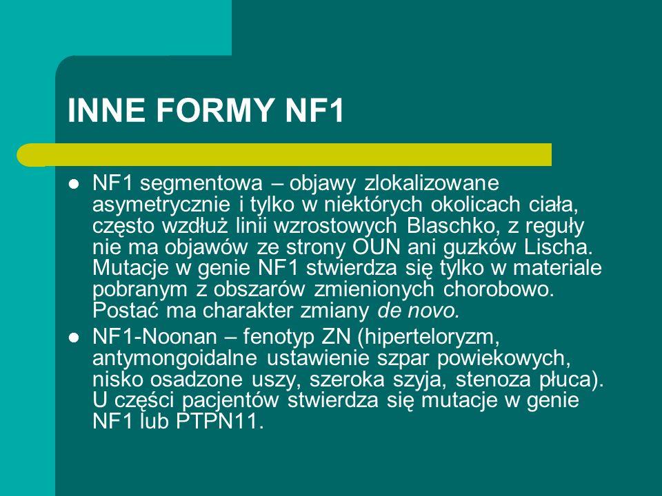 INNE FORMY NF1 NF1 segmentowa – objawy zlokalizowane asymetrycznie i tylko w niektórych okolicach ciała, często wzdłuż linii wzrostowych Blaschko, z reguły nie ma objawów ze strony OUN ani guzków Lischa.
