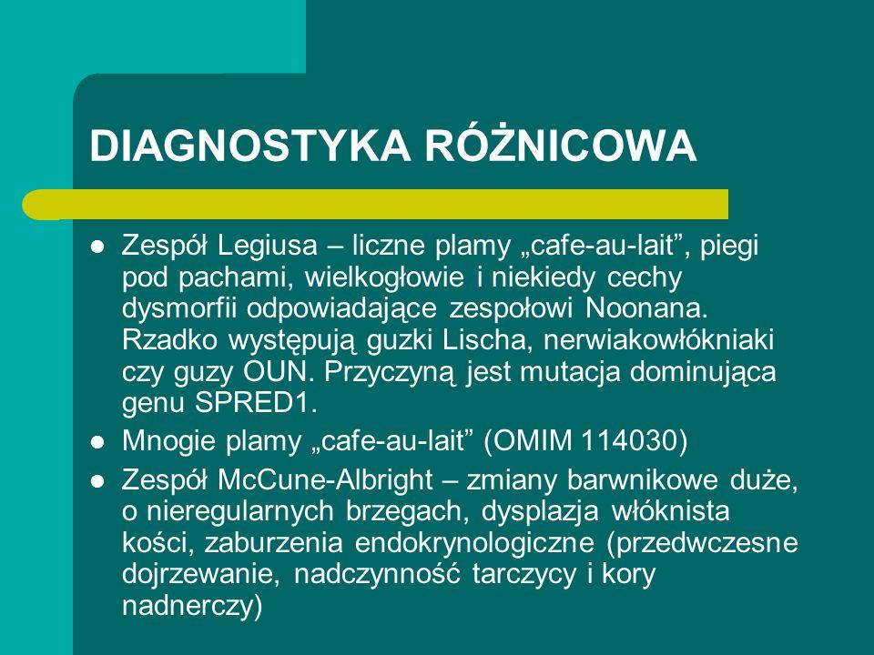 DIAGNOSTYKA RÓŻNICOWA Zespół Legiusa – liczne plamy cafe-au-lait, piegi pod pachami, wielkogłowie i niekiedy cechy dysmorfii odpowiadające zespołowi Noonana.