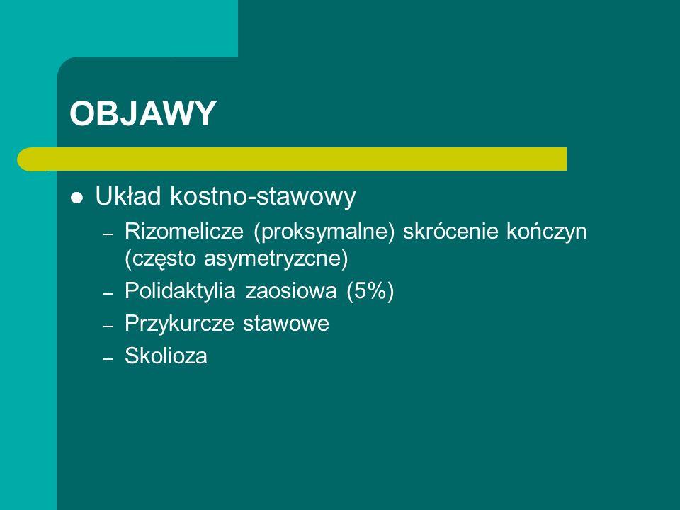 OBJAWY Układ kostno-stawowy – Rizomelicze (proksymalne) skrócenie kończyn (często asymetryzcne) – Polidaktylia zaosiowa (5%) – Przykurcze stawowe – Skolioza