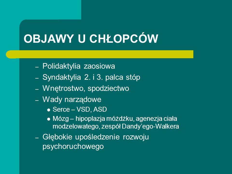 OBJAWY U CHŁOPCÓW – Polidaktylia zaosiowa – Syndaktylia 2.