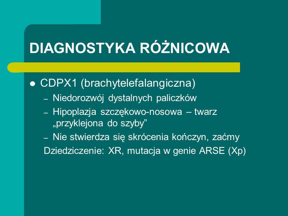 DIAGNOSTYKA RÓŻNICOWA CDPX1 (brachytelefalangiczna) – Niedorozwój dystalnych paliczków – Hipoplazja szczękowo-nosowa – twarz przyklejona do szyby – Nie stwierdza się skrócenia kończyn, zaćmy Dziedziczenie: XR, mutacja w genie ARSE (Xp)