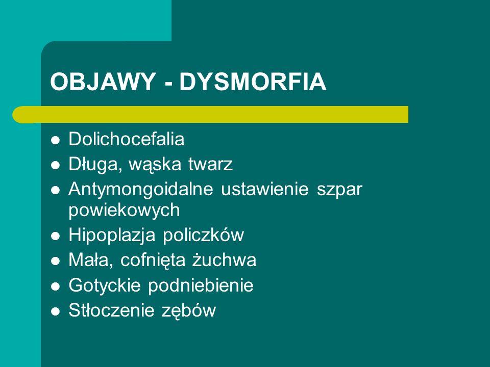 OBJAWY - DYSMORFIA Dolichocefalia Długa, wąska twarz Antymongoidalne ustawienie szpar powiekowych Hipoplazja policzków Mała, cofnięta żuchwa Gotyckie podniebienie Stłoczenie zębów
