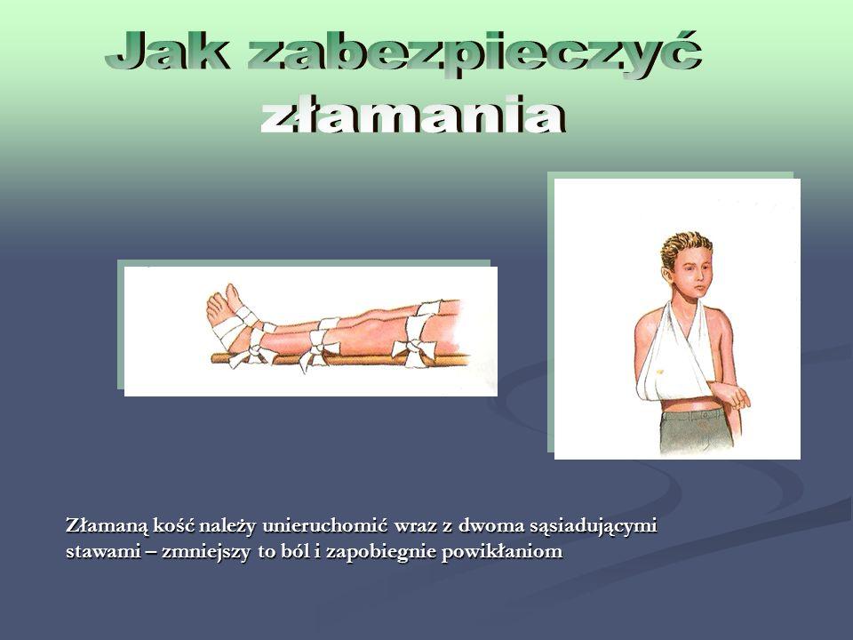 Złamaną kość należy unieruchomić wraz z dwoma sąsiadującymi stawami – zmniejszy to ból i zapobiegnie powikłaniom
