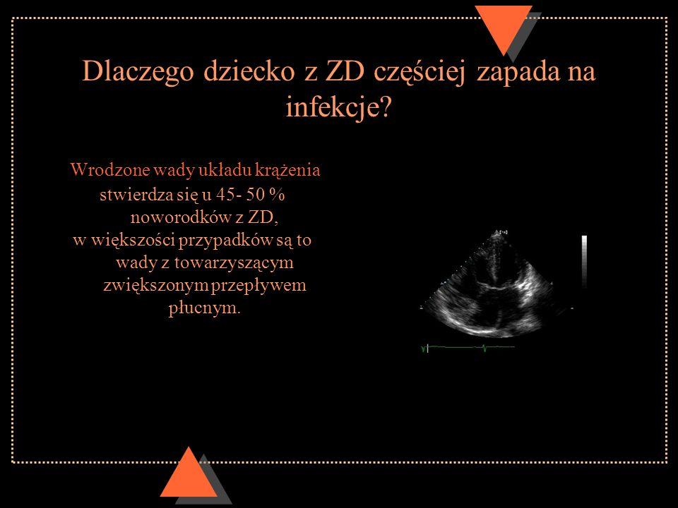 Dlaczego dziecko z ZD częściej zapada na infekcje? Wrodzone wady układu krążenia stwierdza się u 45- 50 % noworodków z ZD, w większości przypadków są