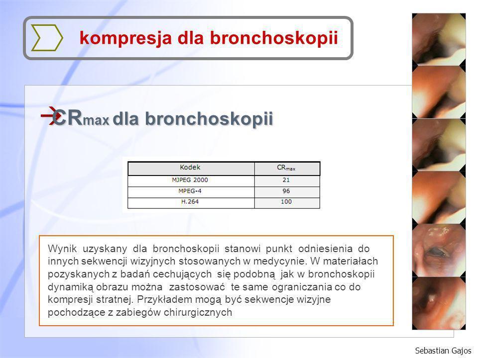 à CR max dla bronchoskopii Sebastian Gajos kompresja dla bronchoskopii Wynik uzyskany dla bronchoskopii stanowi punkt odniesienia do innych sekwencji