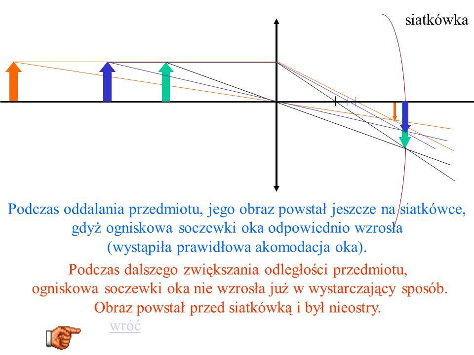 Zdrowe oko Dalekowidz po korekcji za pomocą szkieł dalekowidz Tak widzi dalekowidz