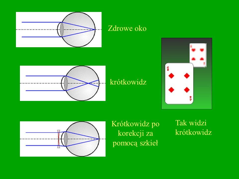 Krótkowzroczność -to zbyt duża zdolność skupiająca soczewki oka (lub wydłużona gałka oczna) w wyniku czego obrazy odległych przedmiotów powstają przed