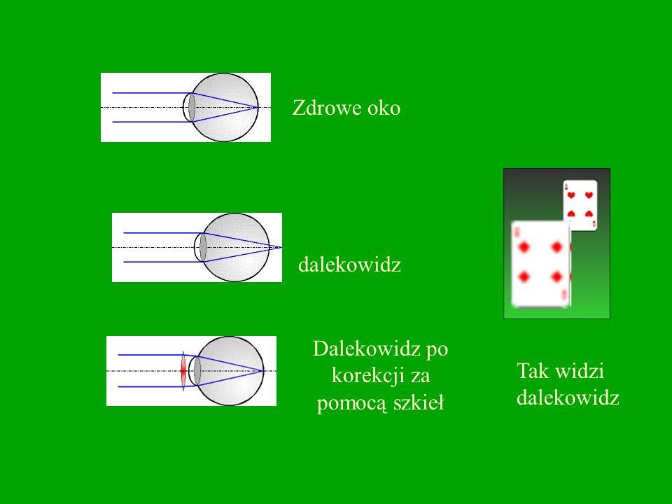 Dalekowzroczność -to zbyt mała zdolność skupiająca soczewki oka (lub spłaszczona gałka oczna), w wyniku czego obrazy bliższych przedmiotów powstają za