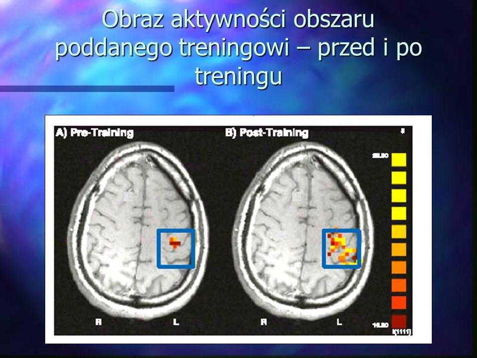 Obraz aktywności obszaru poddanego treningowi – przed i po treningu