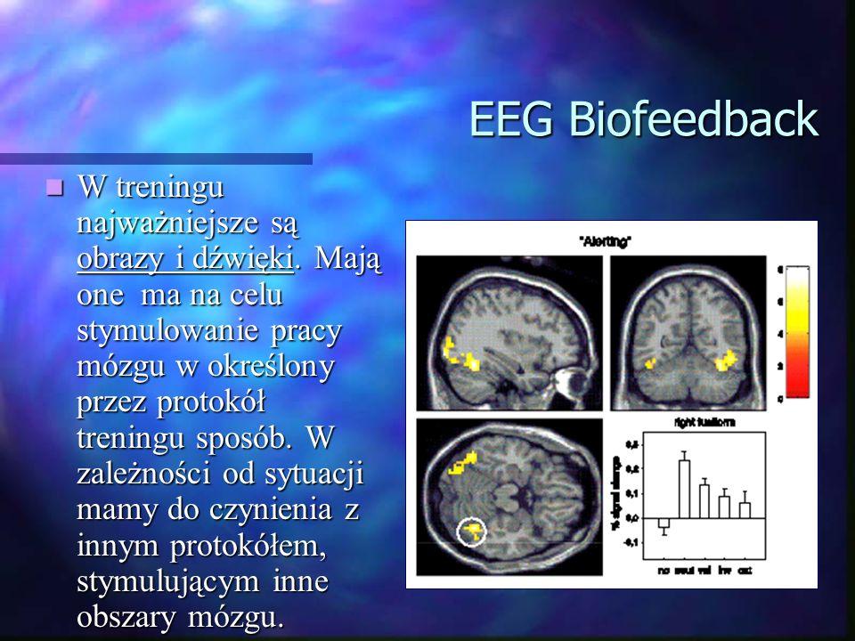 EEG Biofeedback W treningu najważniejsze są obrazy i dźwięki. Mają one ma na celu stymulowanie pracy mózgu w określony przez protokół treningu sposób.