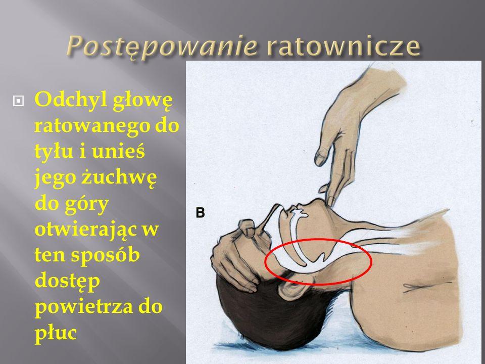 Odchyl głowę ratowanego do tyłu i unieś jego żuchwę do góry otwierając w ten sposób dostęp powietrza do płuc