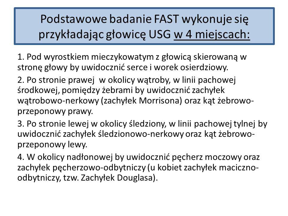 Podstawowe badanie FAST wykonuje się przykładając głowicę USG w 4 miejscach: 1. Pod wyrostkiem mieczykowatym z głowicą skierowaną w stronę głowy by uw