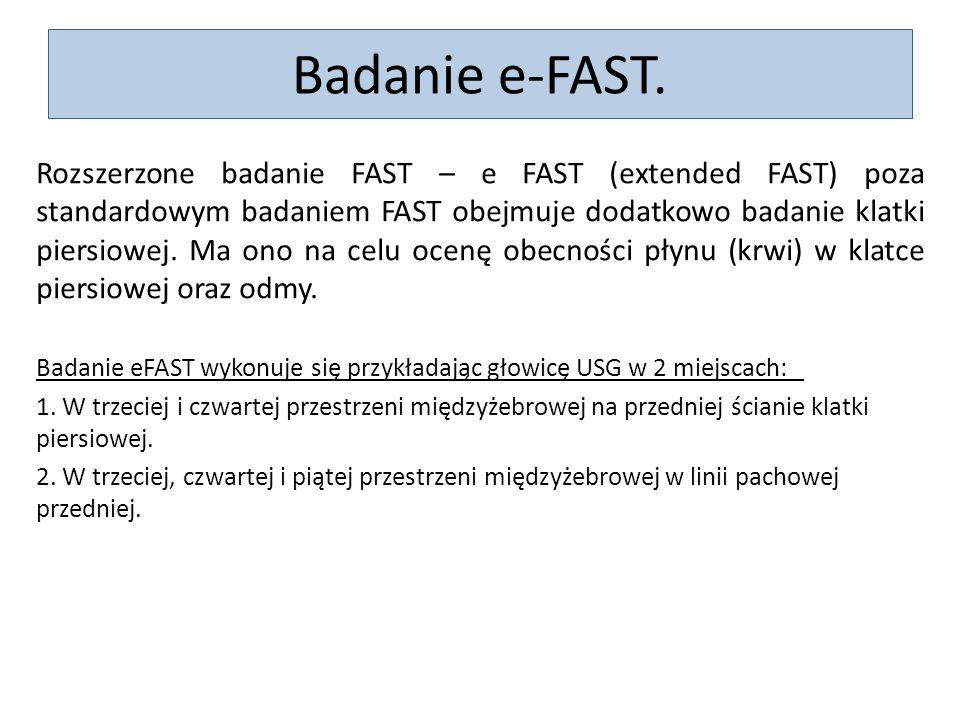 Badanie e-FAST. Rozszerzone badanie FAST – e FAST (extended FAST) poza standardowym badaniem FAST obejmuje dodatkowo badanie klatki piersiowej. Ma ono
