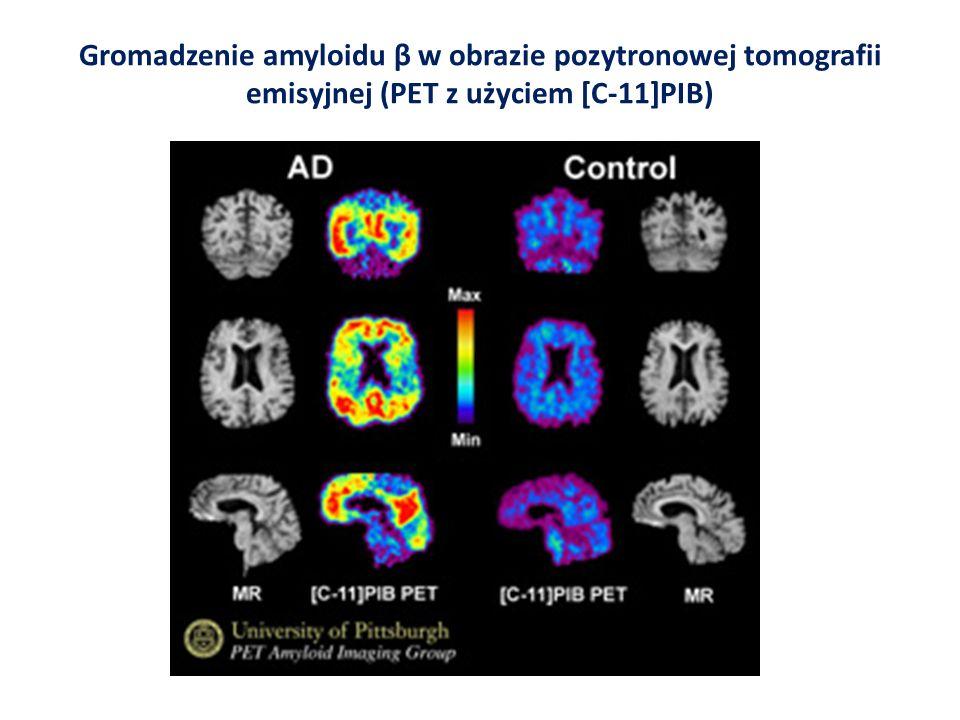 Gromadzenie amyloidu β w obrazie pozytronowej tomografii emisyjnej (PET z użyciem [C-11]PIB) β