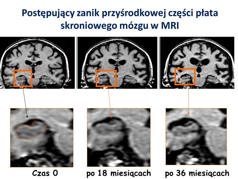 Czas 0 po 18 miesiącach po 36 miesiącach Postępujący zanik przyśrodkowej części płata skroniowego mózgu w MRI