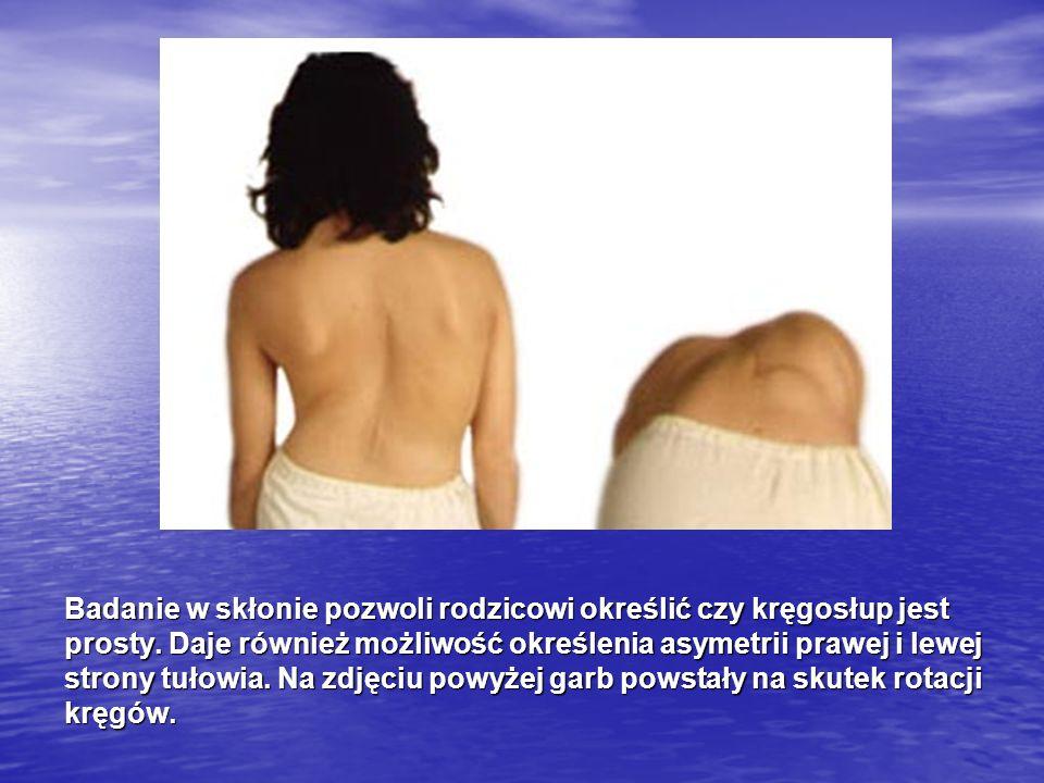 Badanie w skłonie pozwoli rodzicowi określić czy kręgosłup jest prosty. Daje również możliwość określenia asymetrii prawej i lewej strony tułowia. Na