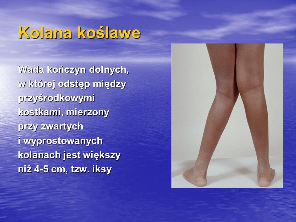Kolana koślawe Wada kończyn dolnych, w której odstęp między przyśrodkowymi kostkami, mierzony przy zwartych i wyprostowanych kolanach jest większy niż