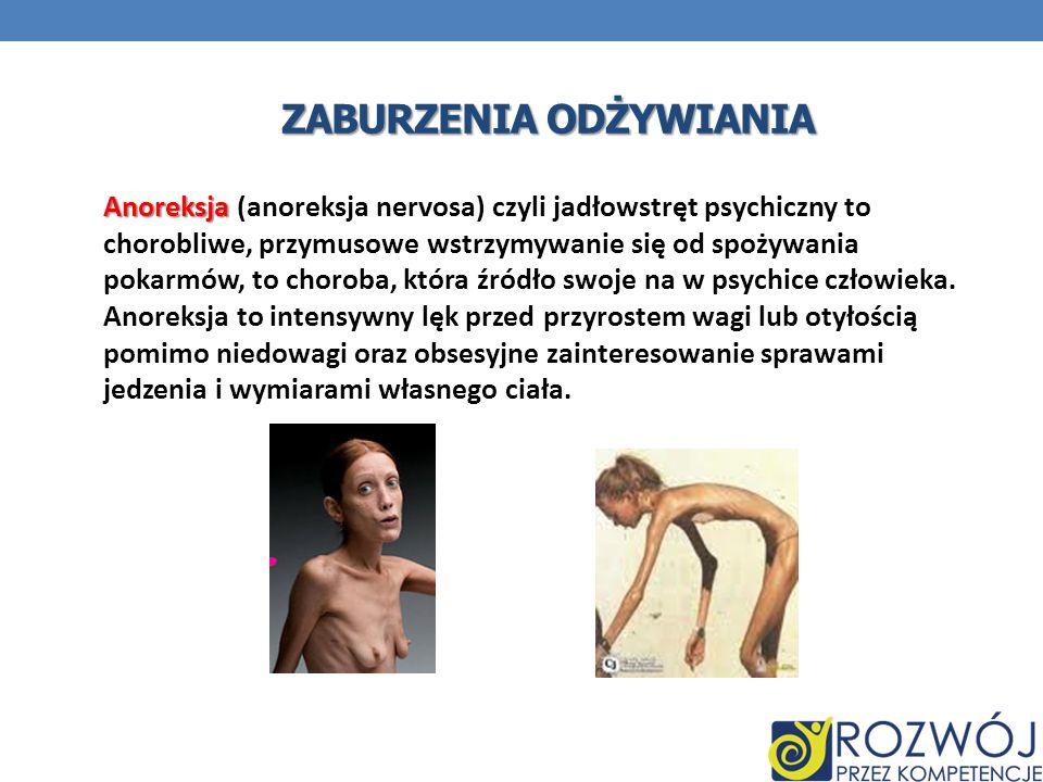 ZABURZENIA ODŻYWIANIA Anoreksja Anoreksja (anoreksja nervosa) czyli jadłowstręt psychiczny to chorobliwe, przymusowe wstrzymywanie się od spożywania p