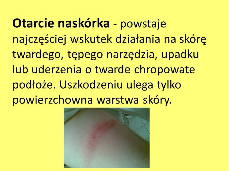 Otarcie naskórka - powstaje najczęściej wskutek działania na skórę twardego, tępego narzędzia, upadku lub uderzenia o twarde chropowate podłoże. Uszko