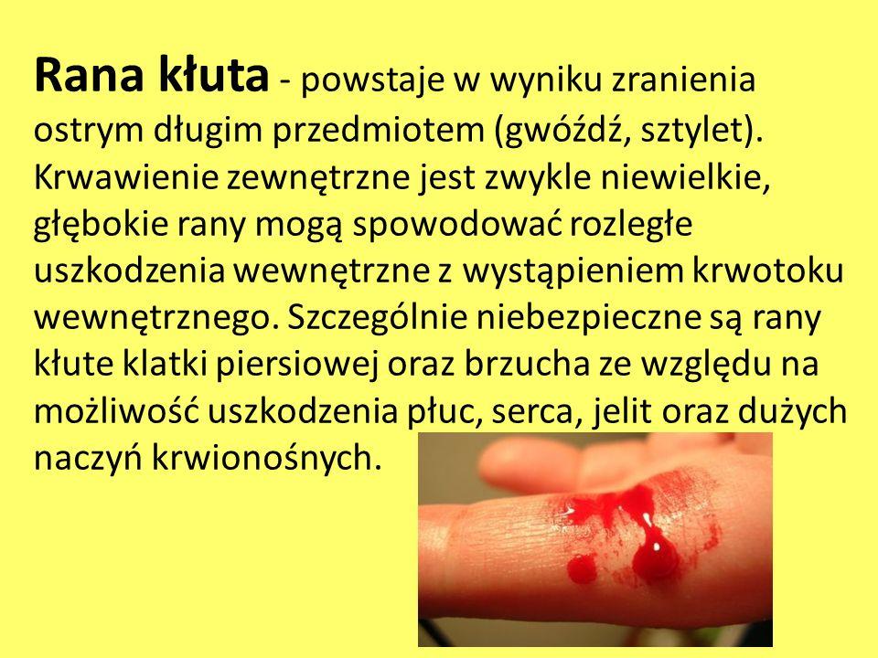 Rana kłuta - powstaje w wyniku zranienia ostrym długim przedmiotem (gwóźdź, sztylet). Krwawienie zewnętrzne jest zwykle niewielkie, głębokie rany mogą
