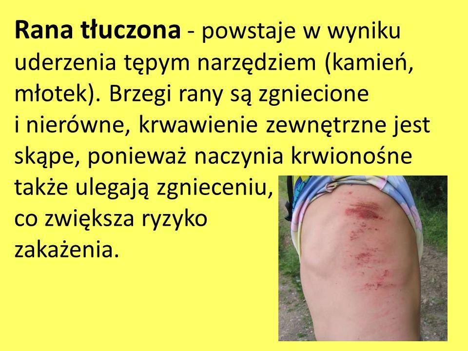 Rana tłuczona - powstaje w wyniku uderzenia tępym narzędziem (kamień, młotek). Brzegi rany są zgniecione i nierówne, krwawienie zewnętrzne jest skąpe,