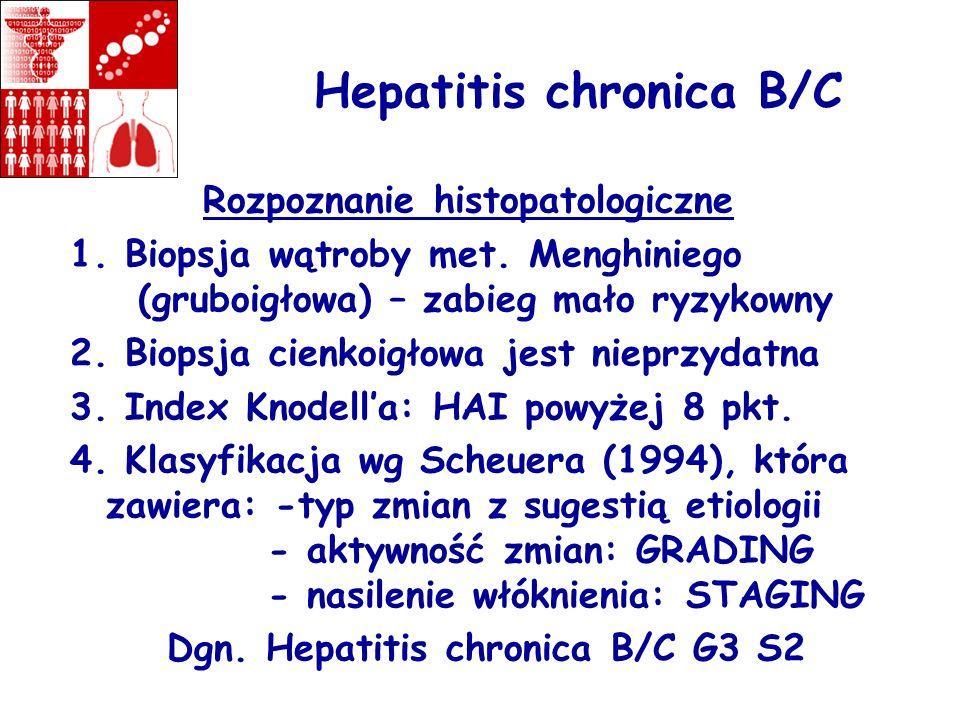 Hepatitis chronica B/C Rozpoznanie histopatologiczne 1. Biopsja wątroby met. Menghiniego (gruboigłowa) – zabieg mało ryzykowny 2. Biopsja cienkoigłowa