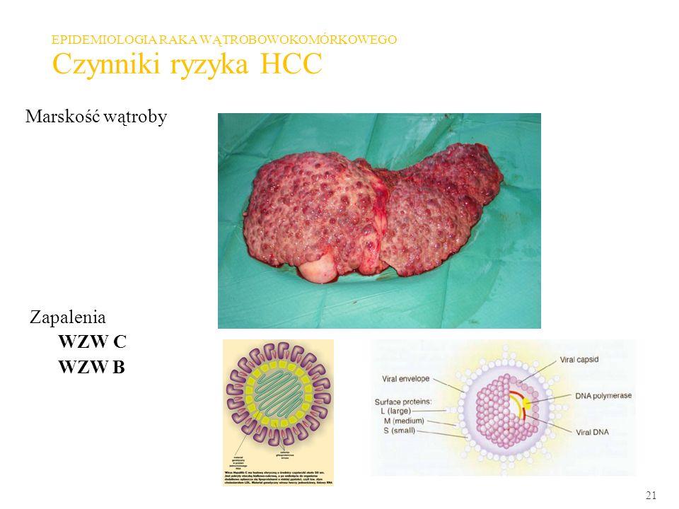 21 EPIDEMIOLOGIA RAKA WĄTROBOWOKOMÓRKOWEGO Czynniki ryzyka HCC Marskość wątroby Zapalenia WZW C WZW B