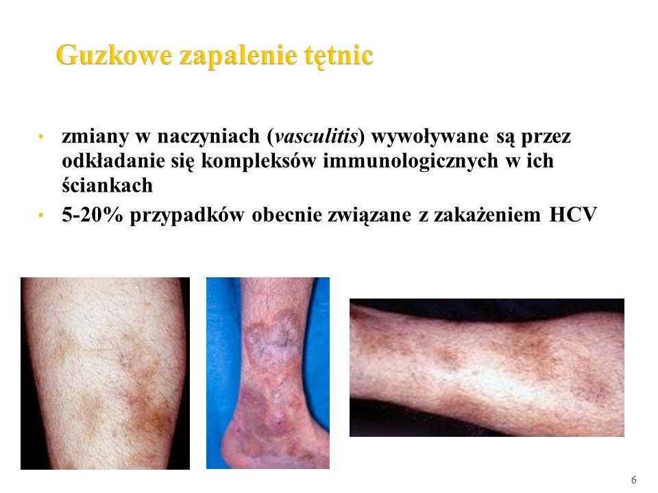 zmiany w naczyniach (vasculitis) wywoływane są przez odkładanie się kompleksów immunologicznych w ich ściankach 5-20% przypadków obecnie związane z za