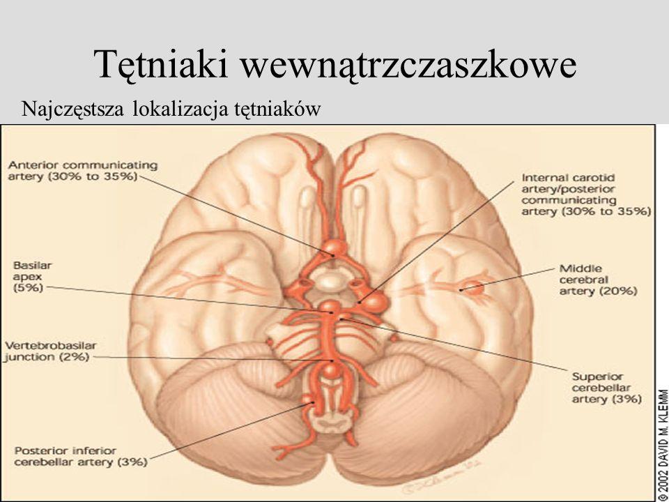 Tętniaki wewnątrzczaszkowe Najczęstsza lokalizacja tętniaków