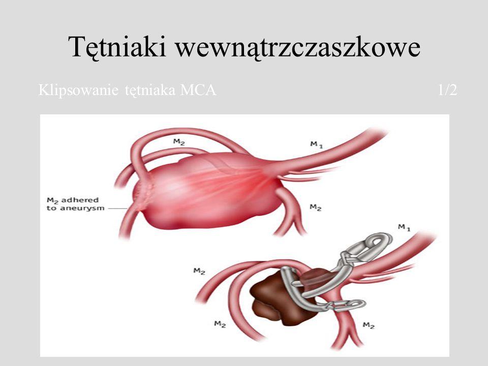Tętniaki wewnątrzczaszkowe Klipsowanie tętniaka MCA 1/2