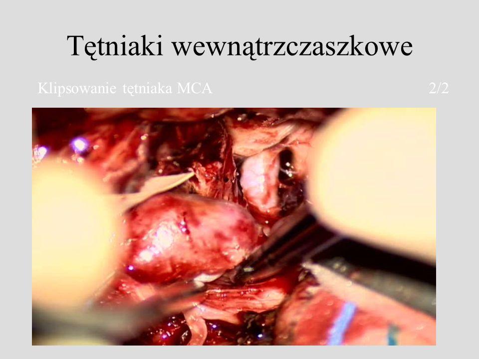 Tętniaki wewnątrzczaszkowe Klipsowanie tętniaka MCA 2/2