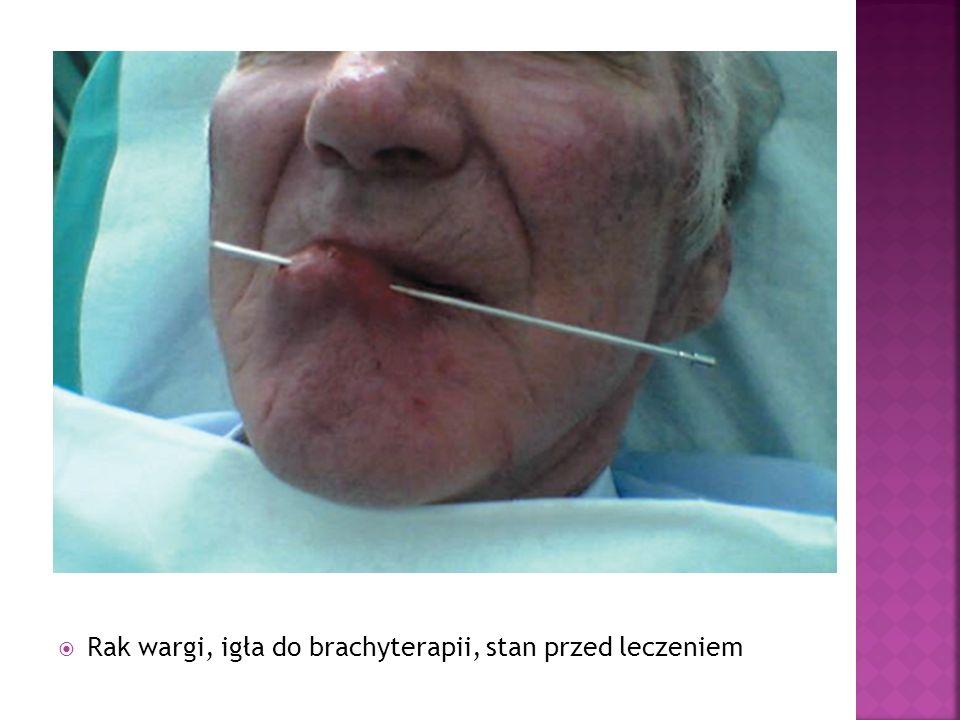 Rak wargi, igła do brachyterapii, stan przed leczeniem