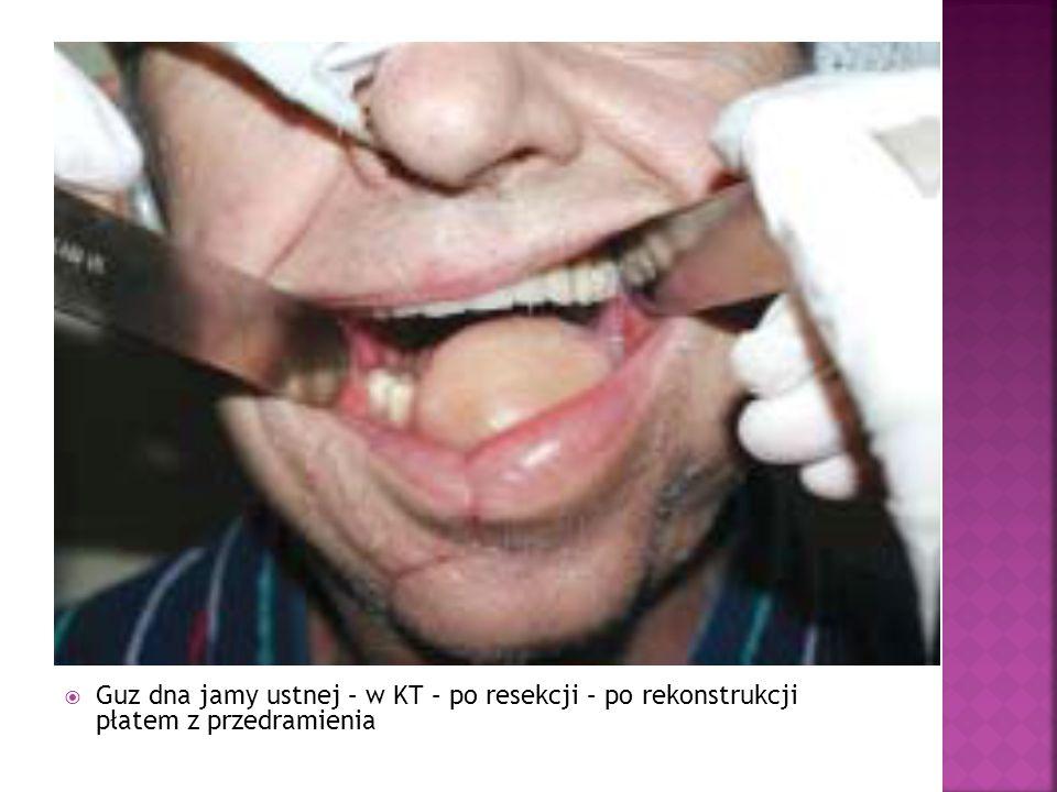 Guz dna jamy ustnej – w KT – po resekcji – po rekonstrukcji płatem z przedramienia