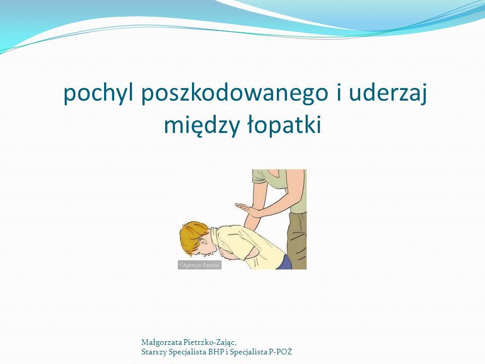 pochyl poszkodowanego i uderzaj między łopatki Małgorzata Pietrzko-Zając, Starszy Specjalista BHP i Specjalista P-POŻ