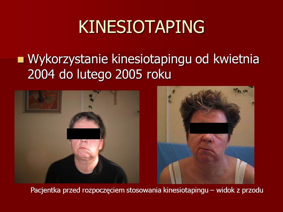 KINESIOTAPING Wykorzystanie kinesiotapingu od kwietnia 2004 do lutego 2005 roku Wykorzystanie kinesiotapingu od kwietnia 2004 do lutego 2005 roku Pacjentka przed rozpoczęciem stosowania kinesiotapingu – widok z przodu